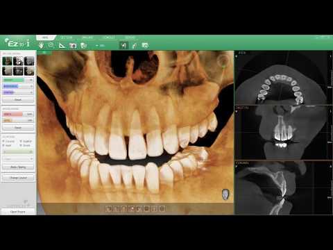 Pax-i 3D - панорамный аппарат с функцией компьютерного томографа