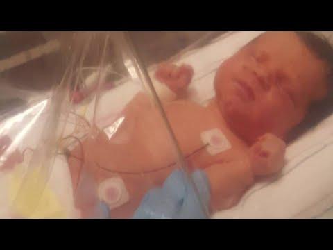VIDEO: Pregnancy Danger: CMV