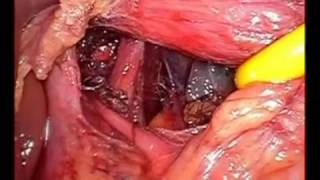 Laparoscopic Fundoplication operation for Hiatal Hernia GERD   Dr  Nitish Jhawar