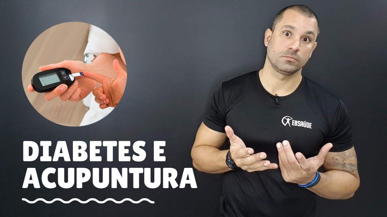 Diabetes E Acupuntura E Auriculoterapia Youtube