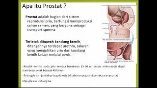 Benign Prostatic Hyperplasia (BPH) merupakan suatu penyakit yang menyeran bagian prostat pada manuas.