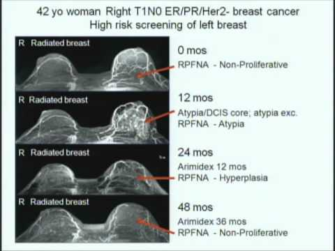 """Good Breast Gone Bad: Lessons Learned in Risk Stratification of Mammary Atypia"""