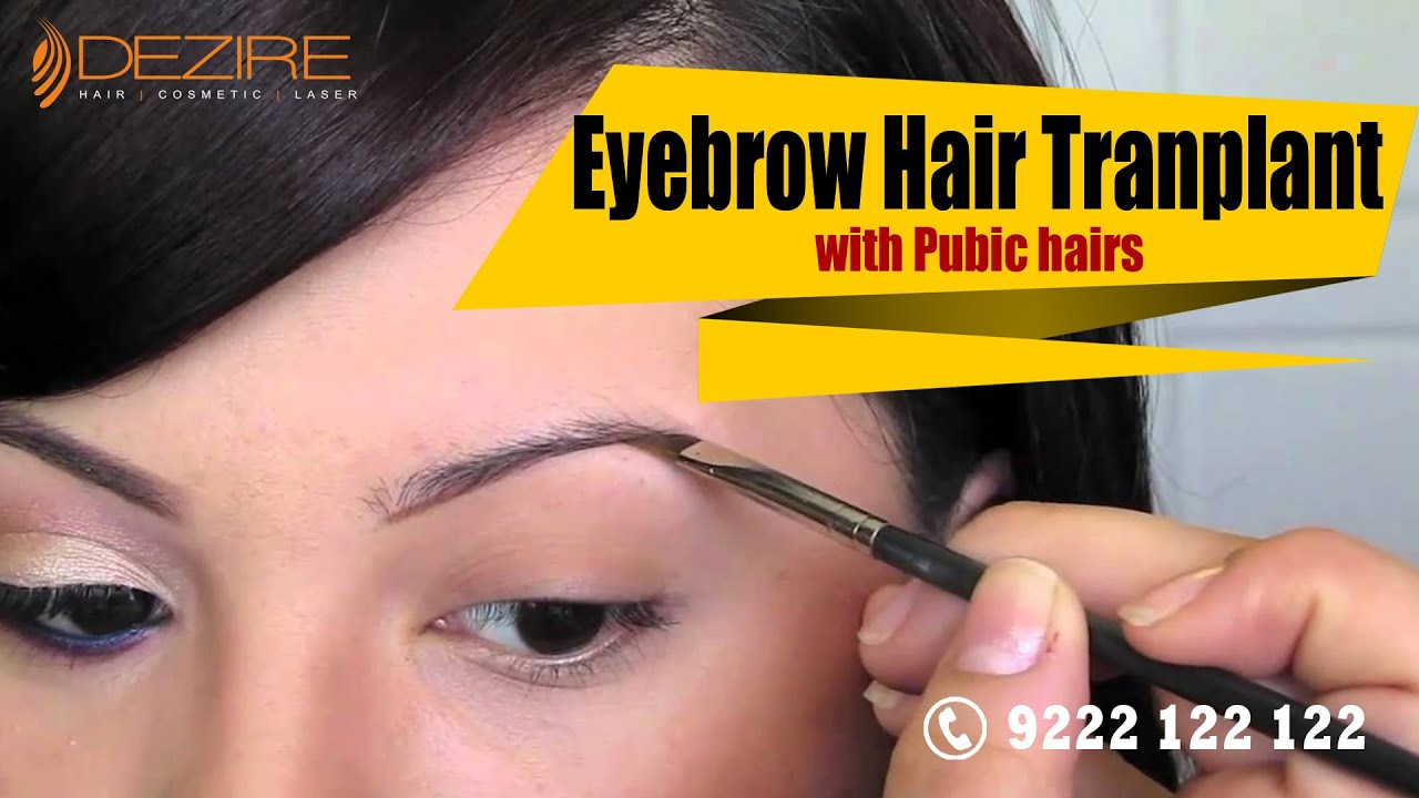 Eyebrow Hair Transplant With Pubic Hairs At Dezire Clinic Pune
