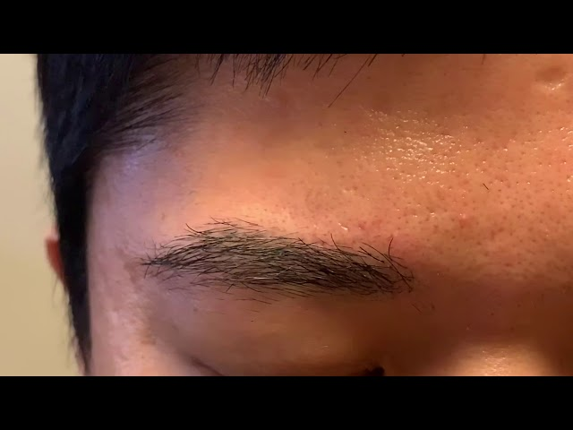 Dallas Asian Eyebrow Hair Transplant