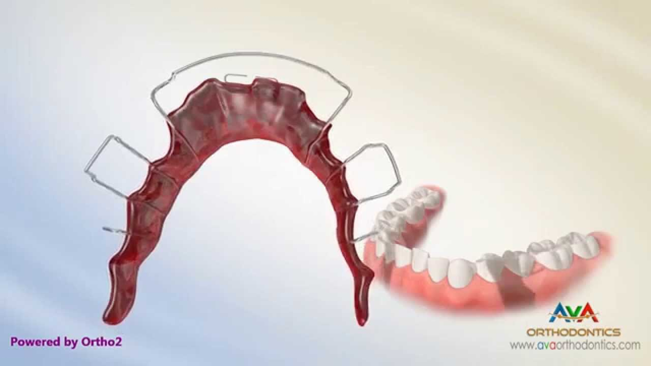 how to make your own invisalign retainer