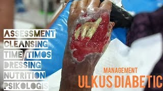 ULKUS DIABETIC, Assesment, Cleansing, TIME/TIMOS, Dressing, Nutrition & PSIKOLOGIS #1