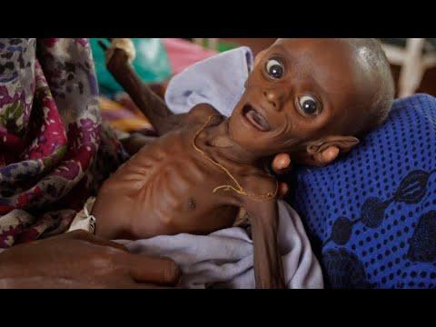 224 مليون أفريقي يعانون من سوء التغذية  - نشر قبل 12 ساعة