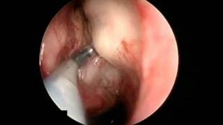 Dr. Masri - Nasal Septum Surgery - Detroit, MI