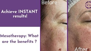 Mesotherapy - What are the benefits?