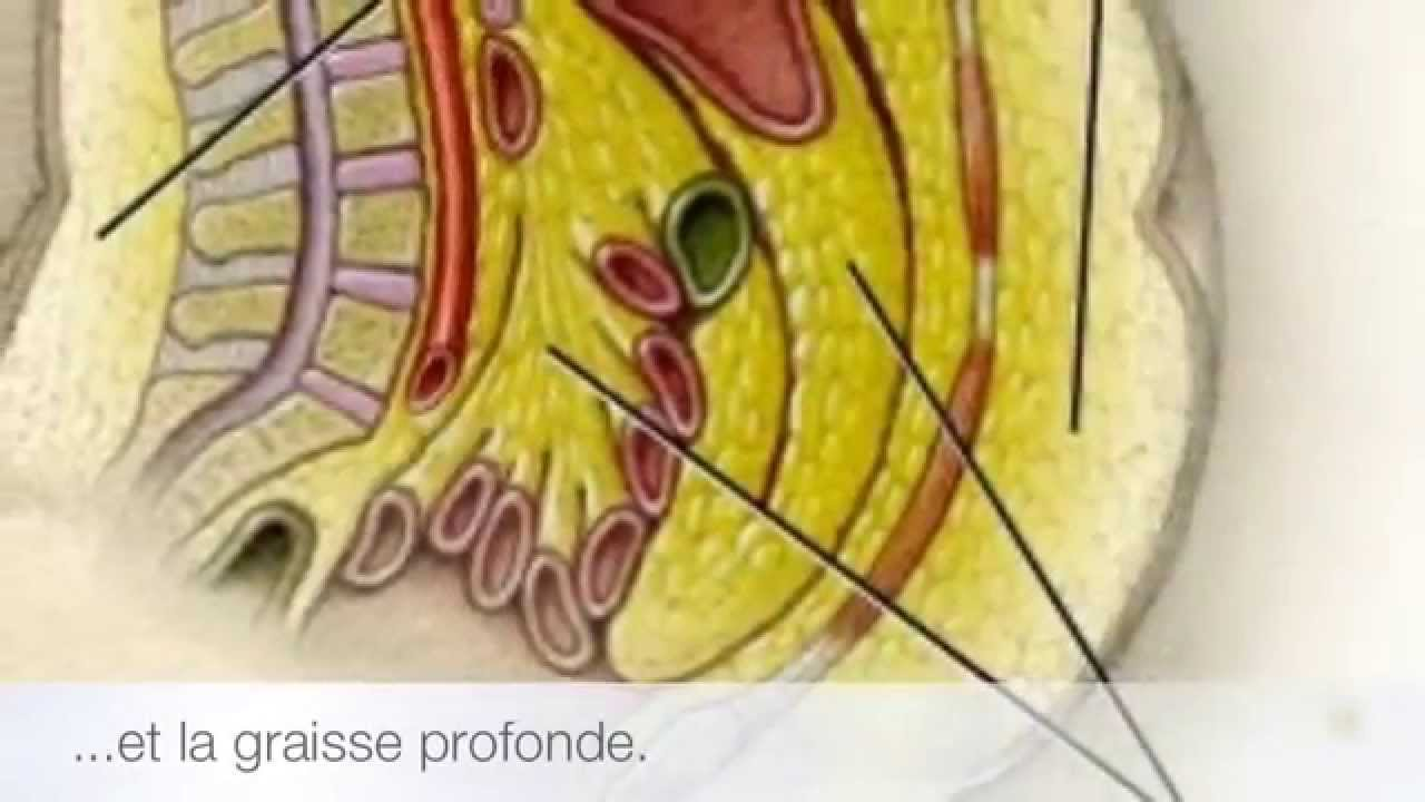 Abdominoplastie : chirurgie du ventre, photos de plastie