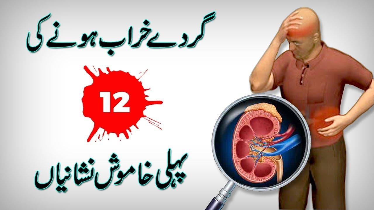 Kidney Failure Symptoms Kidney Disease Symptoms In Urdu Hindi Youtube