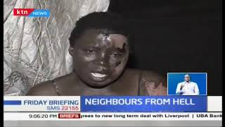 Woman nursing wounds after neighbour burnt her with hot water