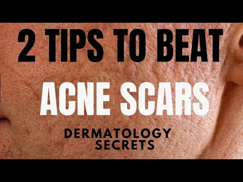 How to treat ACNE SCARS | Dermatologist reveals the best way