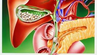 Острый и хронический холецистит и холангит. Причины, лечение холецистита, холангита и дискинезии ЖВП