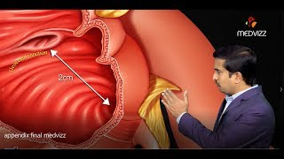 Animated Gross anatomy of Appendix - Position , Blood supply , Venous drinage , Nerve supply