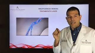 Tratamiento con venoso láser peligros del