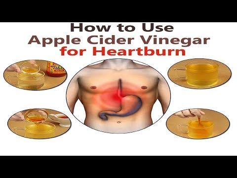 apple-cider-vinegar-for-heartburn-2018-__-acid-reflux-treatment-2018
