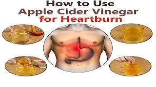 Apple Cider Vinegar for Heartburn 2018 __ Acid Reflux Treatment 2018