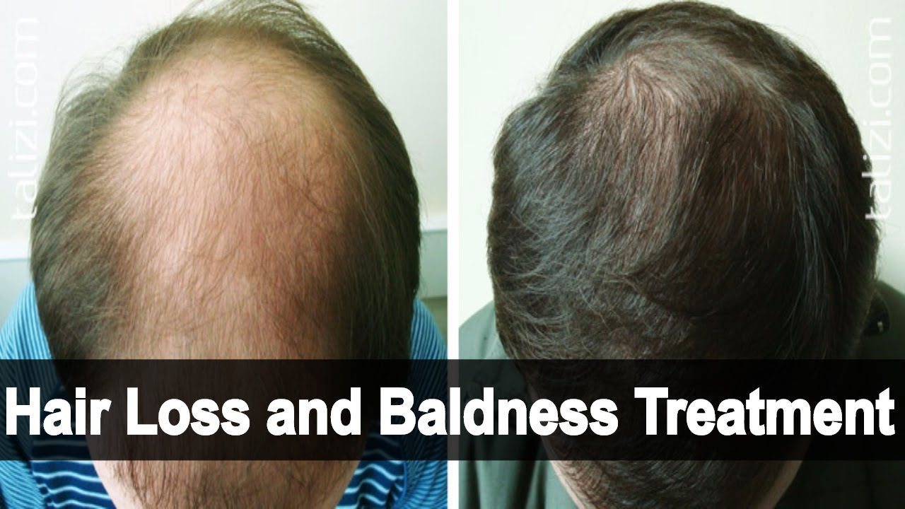 Egg Yolk Treatment In compensation Hair Loss