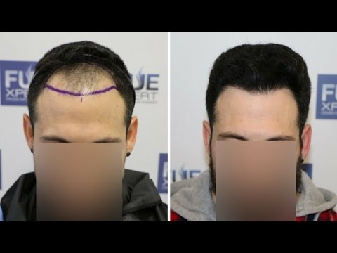 fue-hair-transplant-(1800-grafts-in-nw-class-lll-a),-dr.-juan-couto---fuexpert-clinic--madrid,-spain