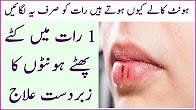 Desi Nuskha - Dry Lips Treatment