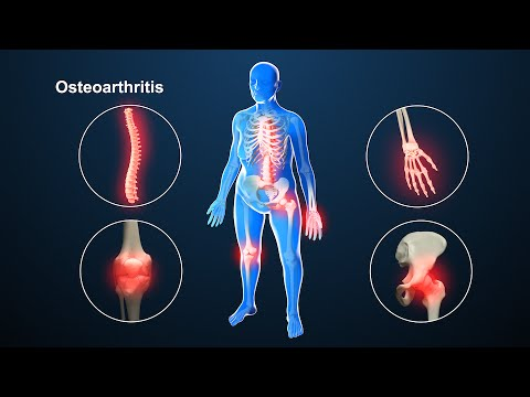 osteoarthritis | nucleus health - youtube, Skeleton