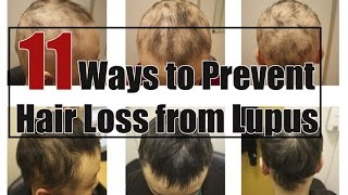 Prevent Hair Loss | 11 Ways to Prevent Hair Loss from Lupus