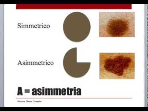 Autocontrollo dei nei | Prevenzione Melanoma