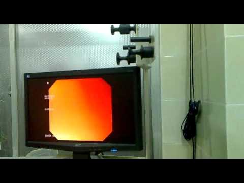 Nội soi Dạ dày - Tá tràng (BV Chợ Rẫy) (của Leo ^^)