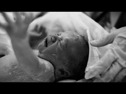 Видео родов кесарево