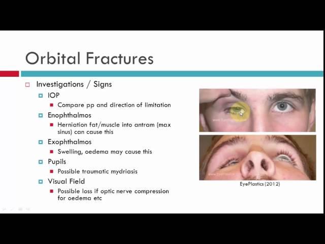 Orbital Blowout Fracture