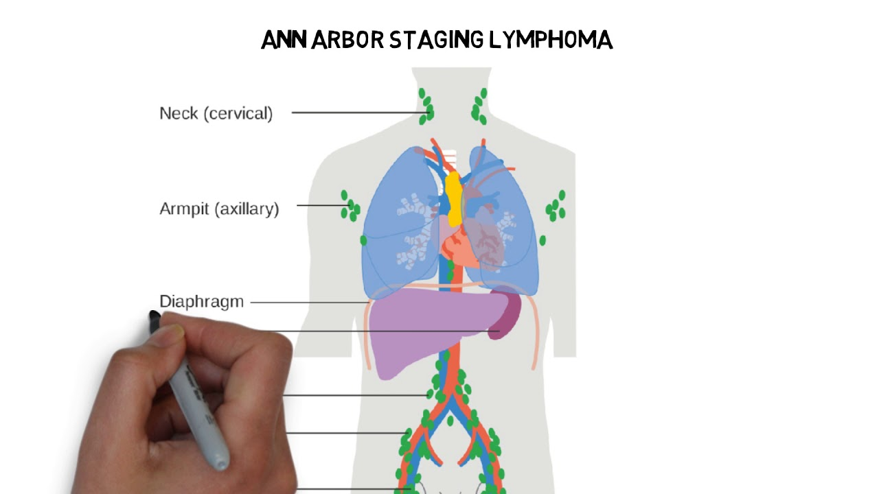 hight resolution of lymphoma hodgkin and non hodgkin lymphoma neet pg usmle made simple for you