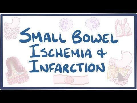 Small bowel ischemia & infarction - causes, symptoms, diagnosis, treatment, pathology