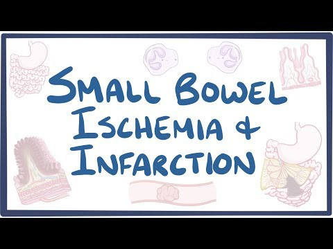 Small bowel ischemia & infarction - causes, symptoms, diagnosis, treatment, pathology