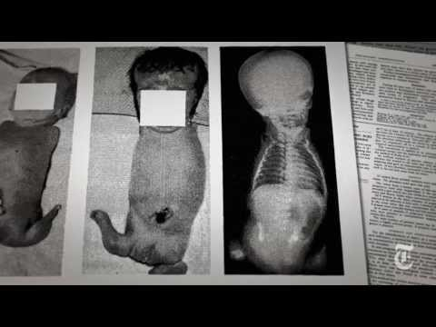 The Shadow of the Thalidomide Tragedy | Retro Report | The New York Times