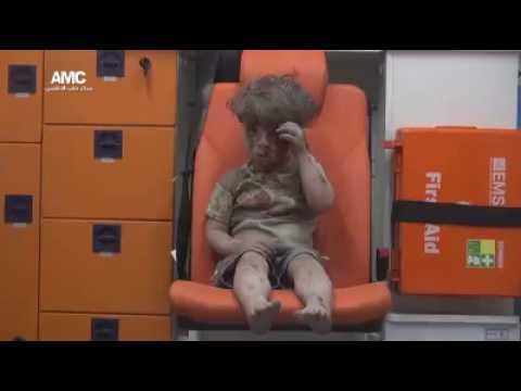 Halep Bombalanması Sonrası Ümran Bebek