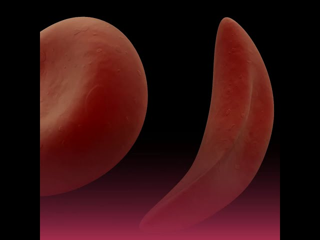 Sickle Cell Disease In Pregnancy