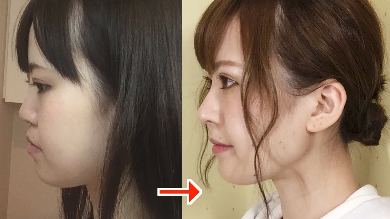整形した韓国芸能人30選!女優・俳優 ...