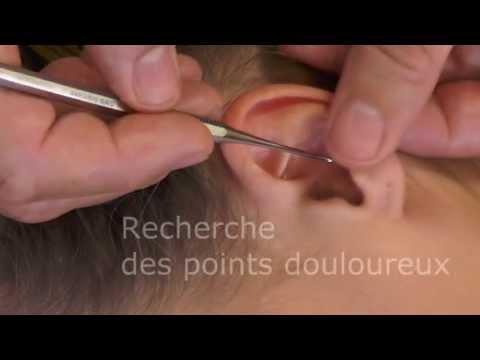 auriculotherapie
