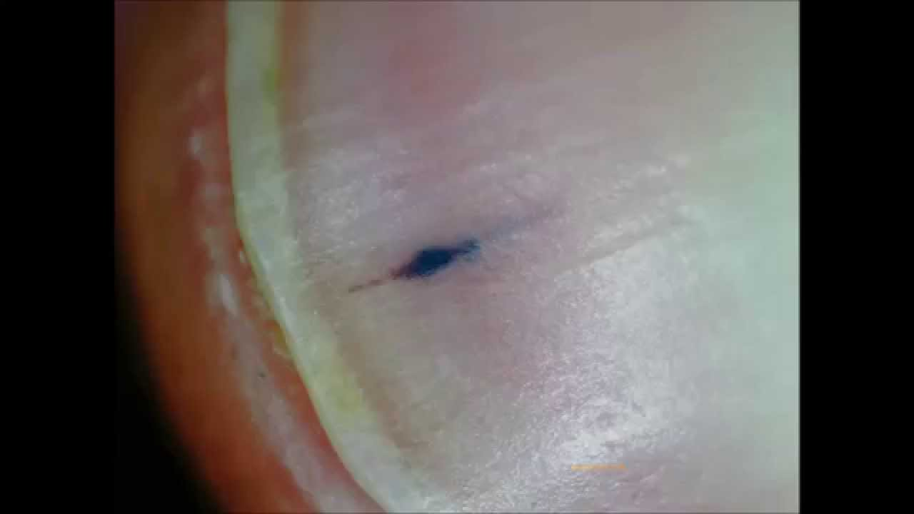 Possible Early Stage Scleroderma Nail Splinter Hemorrhage