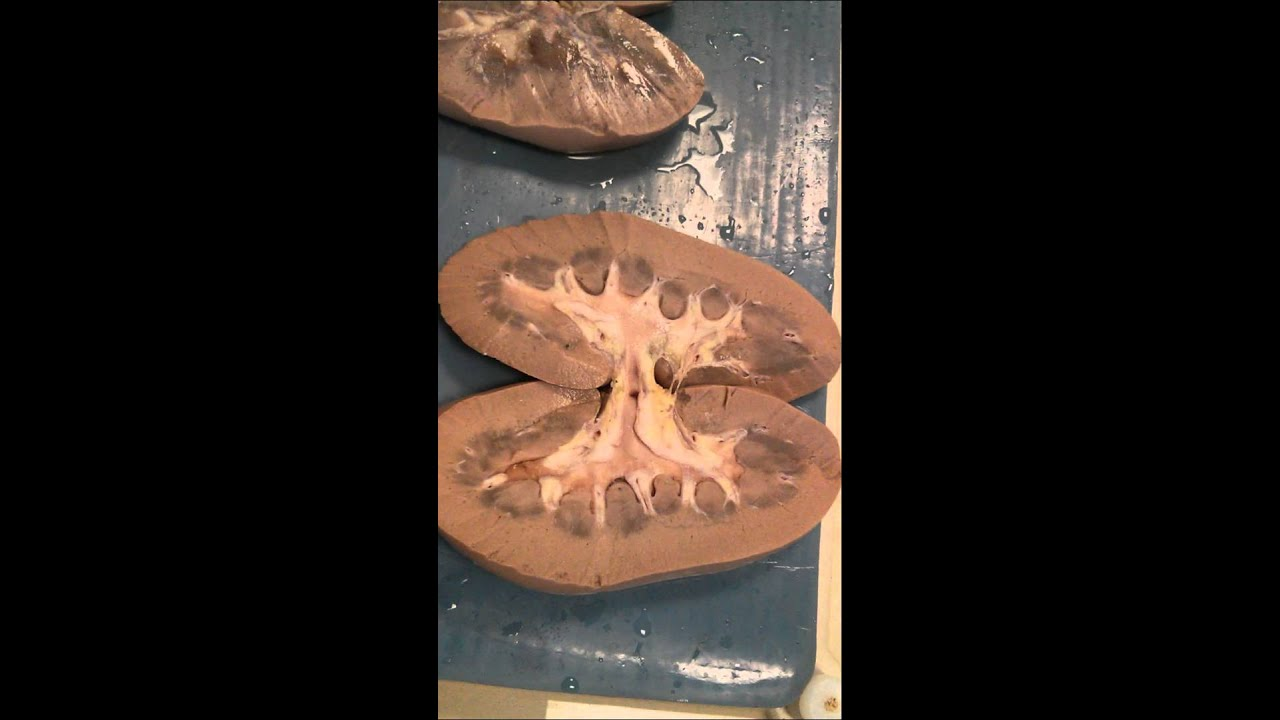Snap Pig Kidney Anatomy Youtube Photos On Pinterest