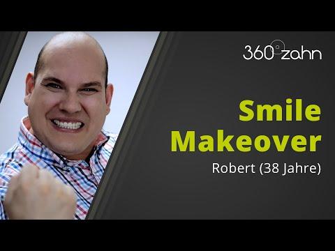 Zahnersatz Vorher Nachher - Robert - 360°zahn