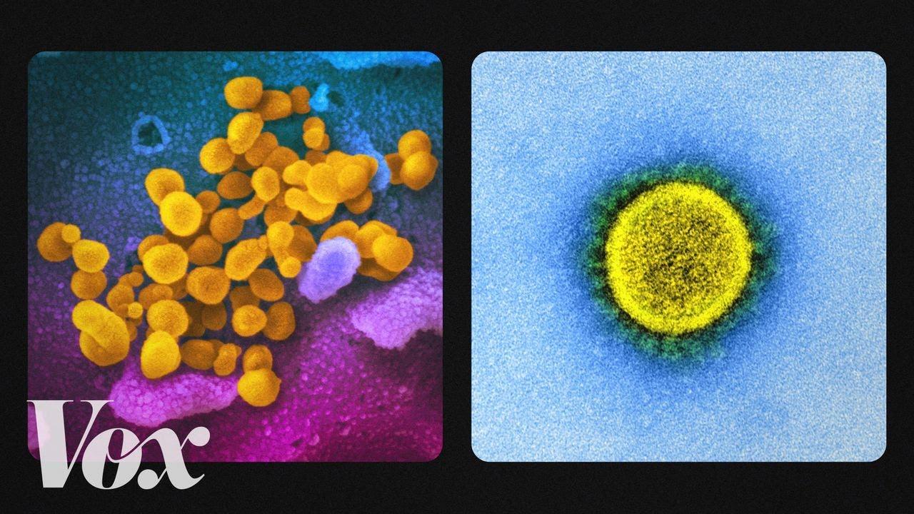 How does Coronavirus look-[Video]