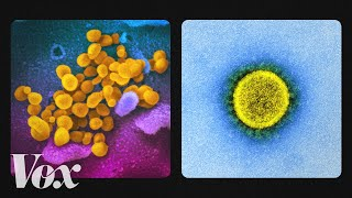 What the coronavirus looks like up close