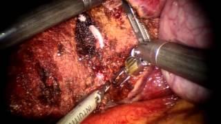 達文西機器手臂肝癌切除手術(肝臟右下後葉切除)