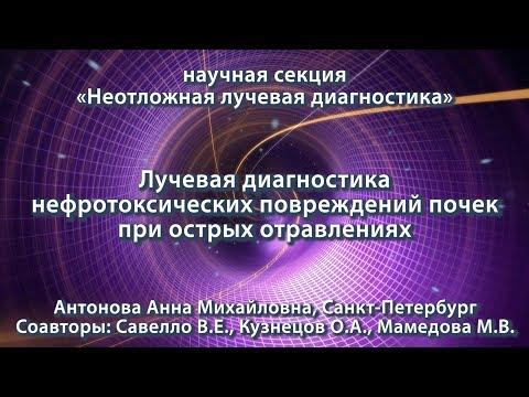 Антонова А.М. — Лучевая диагностика нефротоксических повреждений почек при острых отравлениях