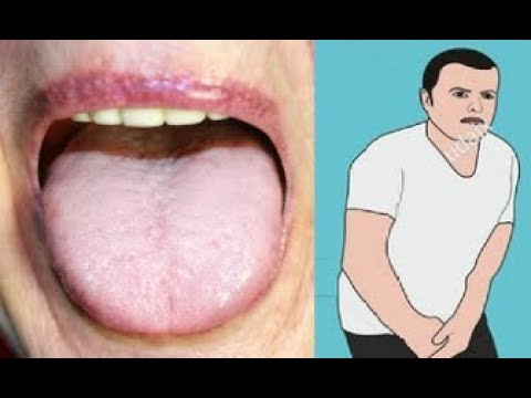 12 Hidden Symptoms That Indicate You Have High Sugar Levels In The Body