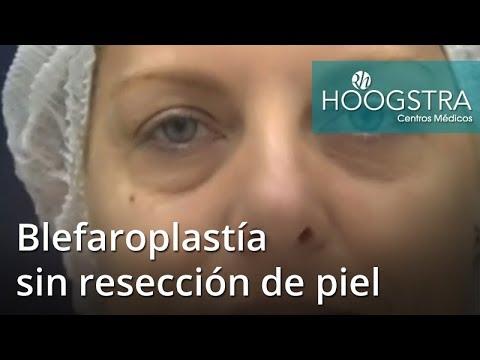 Blefaroplastía sin resección de piel (18208)