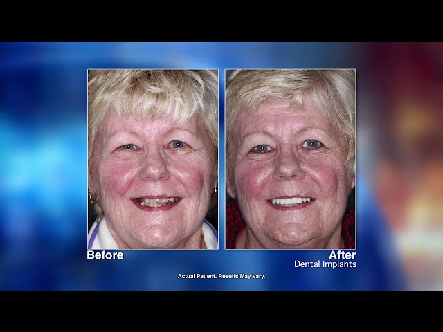 Replacing Missing Teeth with Dental Implants with Pickerington, OH dentist Dr  Phillip Katz 1