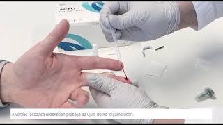 helmintusok a tüdőben röntgenfelvételen ember teniasis kezelése